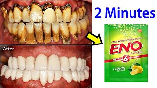 Apply Eno and Make Instant White Teeth In 2 minutes - Teeth Whitening Treatment