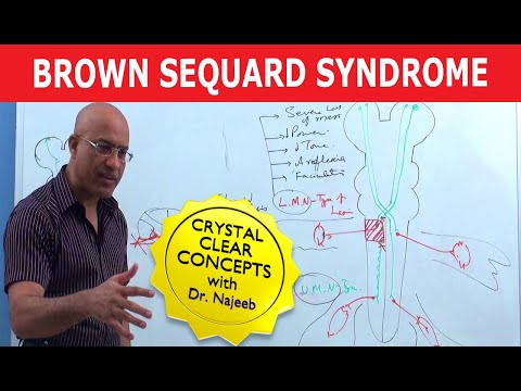 Xxx Mp4 Brown Sequard Syndrome Internal Medicine 3gp Sex