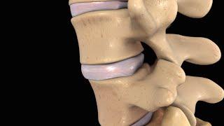 Back Pain: Lumbar Disc Injury