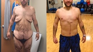 After Losing 458 Pounds Ronnie Brower Has Skin Removed
