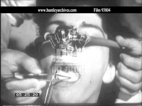 Dental Anaesthesia. Archive film 93804