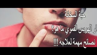 حبة السخانة او الهربس الفموي ما هو؟ نصائح مهمة لعلاجه!!!Herpès labial+conseils pour le soulager