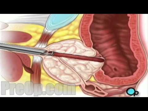 TURP Transurethral Resection Prostate Penis and Bladder PreOp® Surgery Patient Education