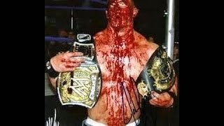 WWE John Cena vs Undertaker ►  Epic Match   Undertaker nearly killed John Cena