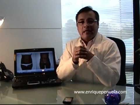 Cuidados Postoperatorios de una Abdominoplastia o Lipectomía. Dr. Jorge Enrique Peñuela