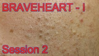 Extraction for Teenage Acne - Session II - Part 1 of 2