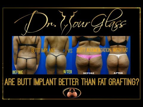 Xxx Mp4 Butt Augmentation Are Butt Implant Better Than Fat Grafting Dr Cortes 3gp Sex