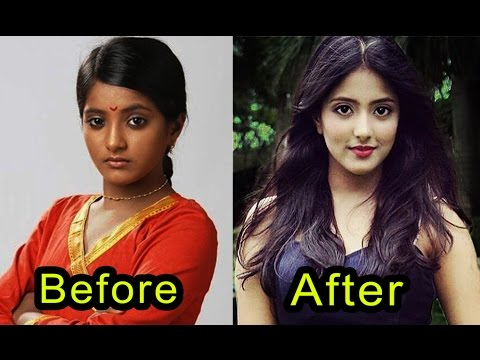 Dark Skin Tv Actress Before & After | Unbelievable Transformation