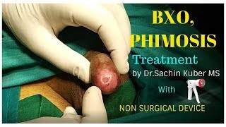 BXO,Phimosis Treatment with Non Surgical Circumcision by Dr.Kuber Call +919370275336/+919370240098