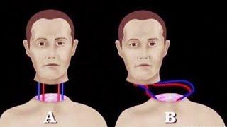 هل تعلم ماذا سيحدث إذا تم نقل رأسك إلى جسد إنسان آخر .. ؟؟!!