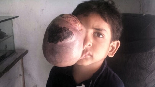 Pakistani Boy With Enormous Tumour On His Eye