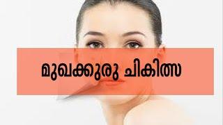 Pimple Treatment |മുഖകുരു ചികിത്സ   Doctor Live 8th July 2015