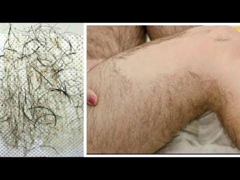 Xxx Mp4 नीचे के अनचाहे बालों से पाए हमेशा के लिए छुटकारा Remove Unwanted Hair 3gp Sex
