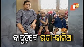 Separated Conjoined Twins Jaga & Kalia To Be Shifted To Cuttack Medical