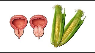نسخه باستانی و طبیعی کاهش سایز پروستات
