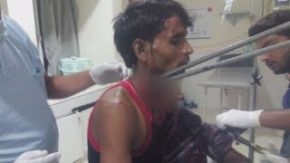 In an accident iron rods got stuck in a man's neck, operation saved life | First India News