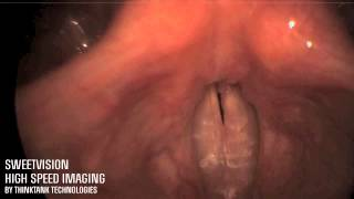 500fps, HD motion analysis of the vocal cords with SweetVision High Speed systems
