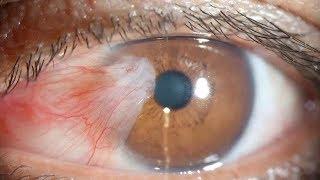 ما كان يفعله كل ليلة سبب له سرطان العين.. تأكد أنك لا تفعل هذا كل يوم !