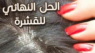 لكل من تعاني من الشعر الخفيف من الامام اضيفي هدا المكون للشامبو الخاص بك وتحصلي على شعر كالباروكة