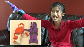 11-Year-Old Gets 3D-Printed Hands After Dad Meets Engineering Student in Uber