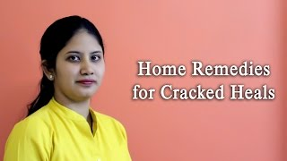 Home Remedies for Cracked Heels (Hindi)