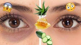 درمان تیرگی و پف دور چشم | درمان خانگی معجزه گر چروک دور چشم