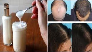 شامبو الباكينك صودا الذي يوقف تساقط الشعر و يعزز نمو الشعر و ينشط الشعر بشكل عجيب !