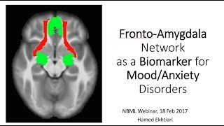 Human Brain Mapping Webinars, Farsi, 5th Session, Amygdala Prefrontal Connectivity