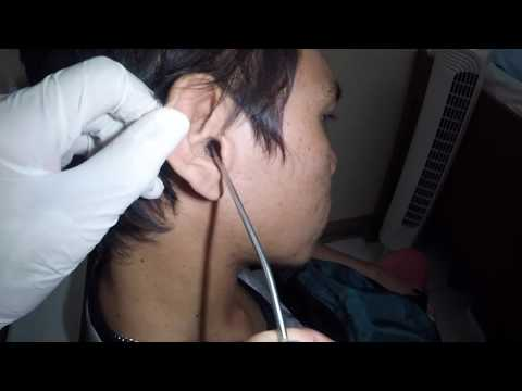 Man's Earwax Blockage  or Ear Fungus Removed by Ear Suction