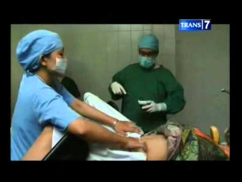 Operasi kista part1.mp4