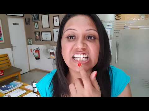 My Tooth Cleaning Experience at CLOVE Delhi- Mamta Sachdeva