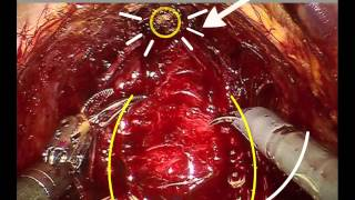 improving erections after prostate cancer surgery with nerve mapping