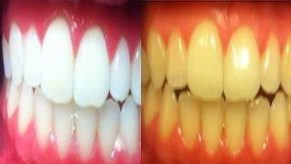 حولي في 5 دقائق اسنانك من صفراء الى بيضاء نظيفة  براقة ولامعة  بطريقة بسيطة و مضمونة