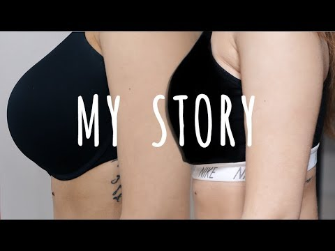 Xxx Mp4 MY BIG REDUCTION STORY Full Recovery Included 3gp Sex