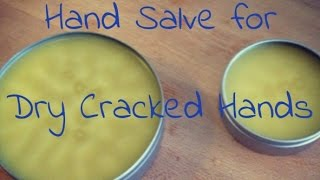 Hand Salve for Dry Cracked Hands, Feet and Nails