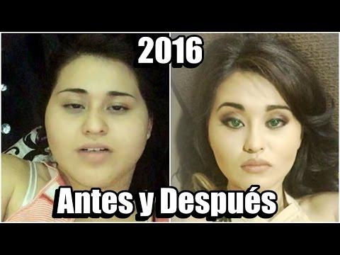 GOMITA ANTES Y DESPUÉS 2016