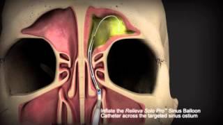 Balloon Sinuplasty Procedure Animation