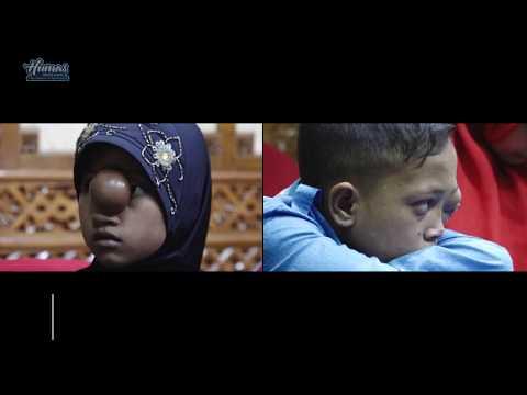 Xxx Mp4 Gubernur Aceh Semangati Anak Penderita Kanker 3gp Sex