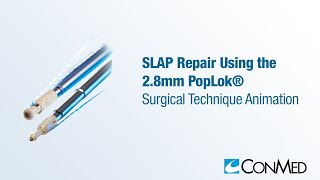 SLAP Repair Using the 2.8mm PopLok® - ConMed Animation
