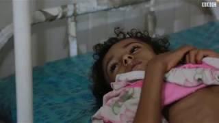 مئات آلاف الأطفال على شفى الموت جوعا في اليمن
