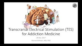 Talk in Persian: NewvHopes for Transcranial Electrical Brain Stimulation in Addiction Tx