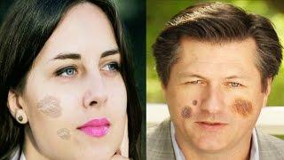 चेहरे के काले दाग धब्बे हटाएँ | Special Remedies For Dark Spot on Face | Subtitles English