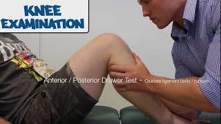 Knee Examination - OSCE Guide  (Old Version)
