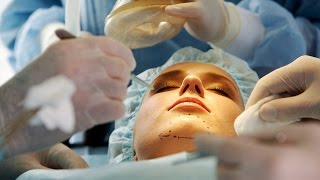 What You Need to Know about Chin Implants | Plastic Surgery