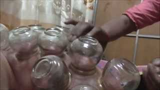Traditional Khmer Coin And Suction Massage