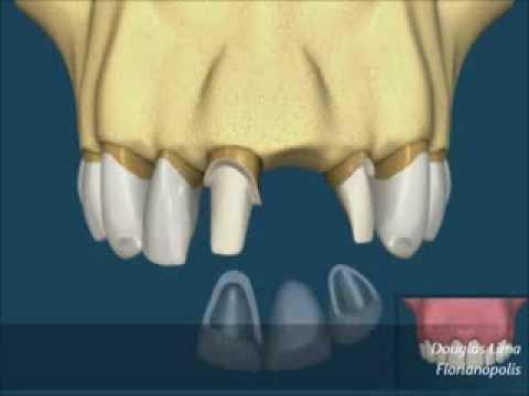 Implante ou ponte fixa