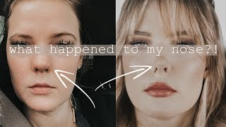 THE STORY OF MY NOSE | Addressing internet hate about me...not deleting ;)