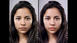 How to retouching Skin   Advanced Photo Retouching Photoshop Tutorial
