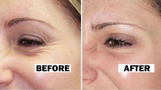 Remove Wrinkles Permanently AT HOME with 2 INGREDIENTS ONLY | Anti Aging Face Mask
