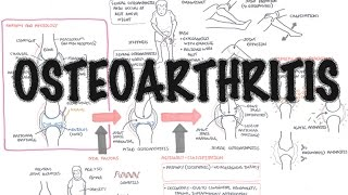 Osteoarthritis (DETAILED) Overview